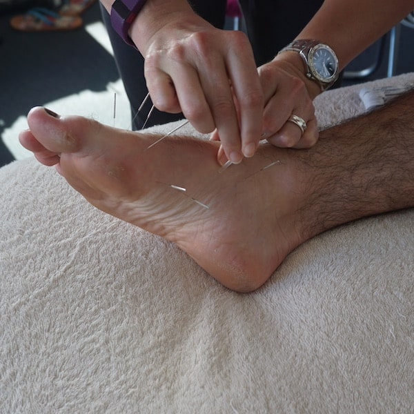 Dry Needling Courses for Physiotherapists in Sydney, Melbourne & Brisbane