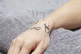 Precise Points Dry Needling Courses in Sydney, Melbourne & Brisbane 80hr