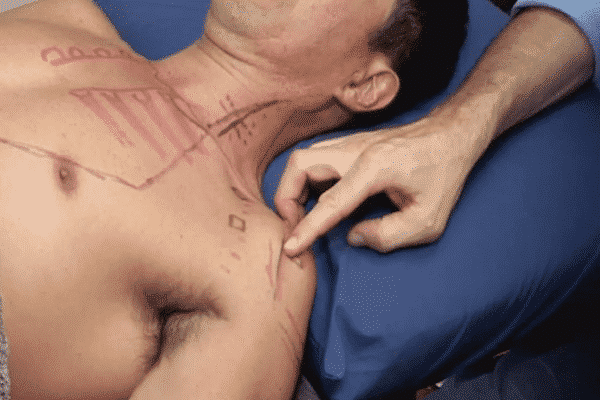 Precise Points Dry Needling Courses in Sydney, Melbourne & Brisbane Upper Limb