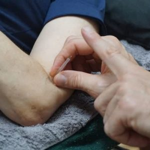 Precise-Points-Dry-Needling-Courses-in-Sydney-Melb