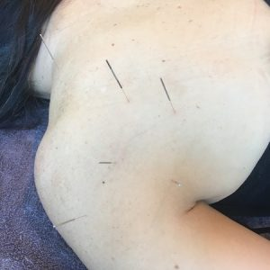 Level 1 Precise-Points-Dry-Needling-Courses-in-Sydney-Melbourne