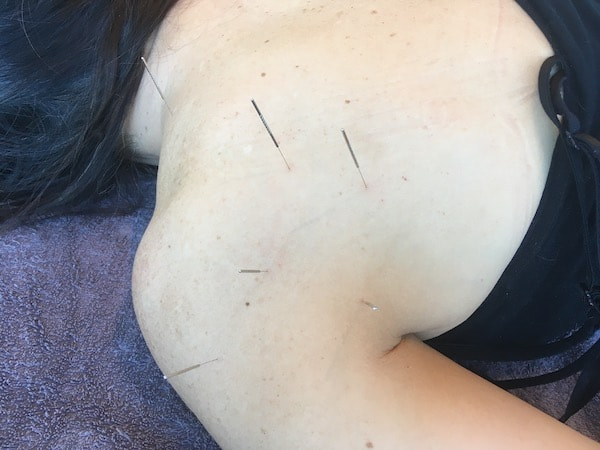Precise Points Dry Needling Courses in Sydney, Melbourne & Brisbane Level 1